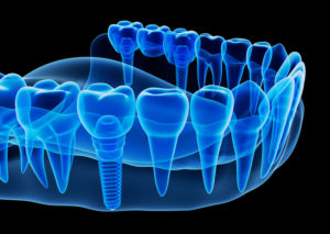Dental Implants in Houston, Texas with OMSH.