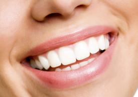 dental-implants-houston-stays-beautiful