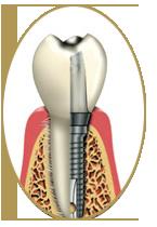 Dental Implants - Cosmetic Dentistry Houston
