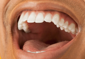 dentists-houston-new-teeth