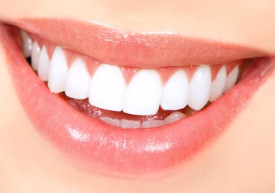 When Was Your Last Smile Check Up?