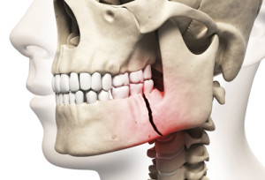 Jaw Bone Grafting