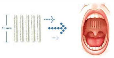 pillar-procedure-implants