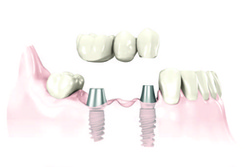 Dental Implants Preserve and Protect Bone, brought to you by the Oral Surgeons OMSH in Houston TX