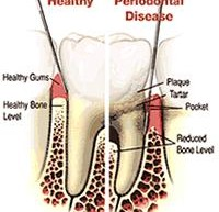 Cosmetic Dentistry Houston
