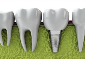 History-of-Dental-Implants