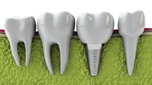 A diagram of a dental implant inside a patients jaw.