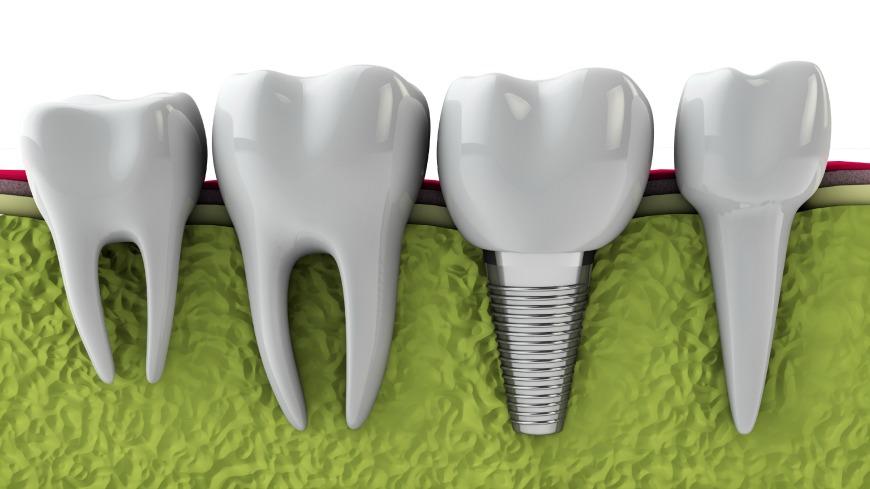 dental implants Houston