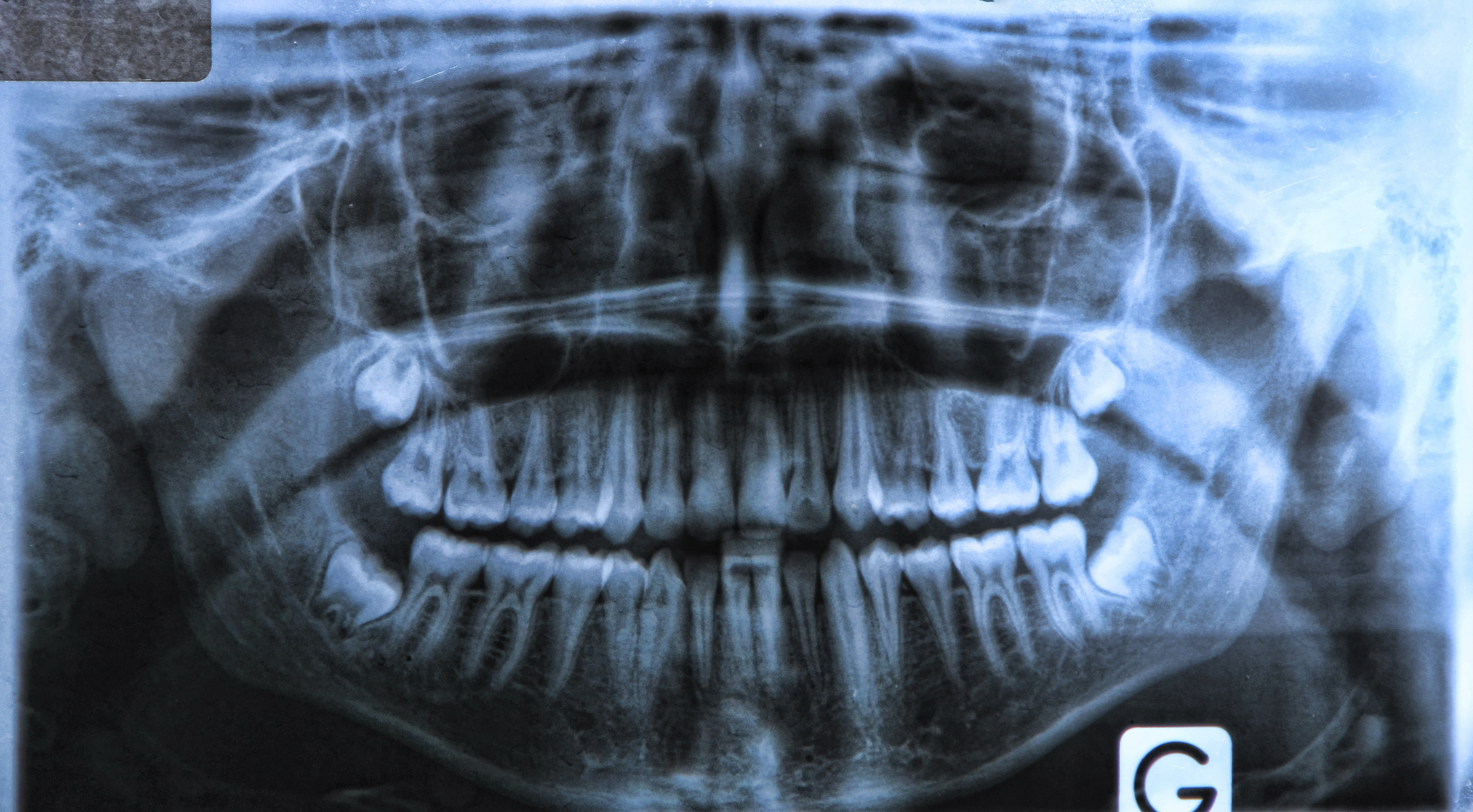 Wisdom Teeth XRay