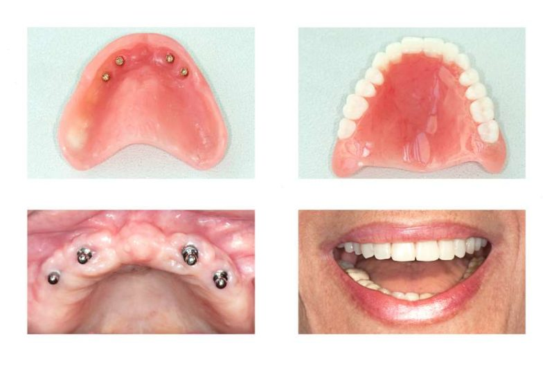 dental implants and denture of upper jaw, maxilla