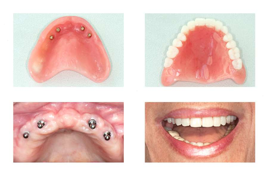 How All-On-4 Implants Can Be Better Than Dentures