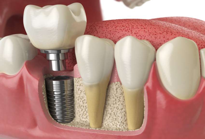 6 Things To Know About Bone Grafts For Dental Implants Omsh