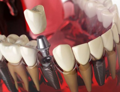 Dental Implants Offer an Innovative Alternative to Bridges