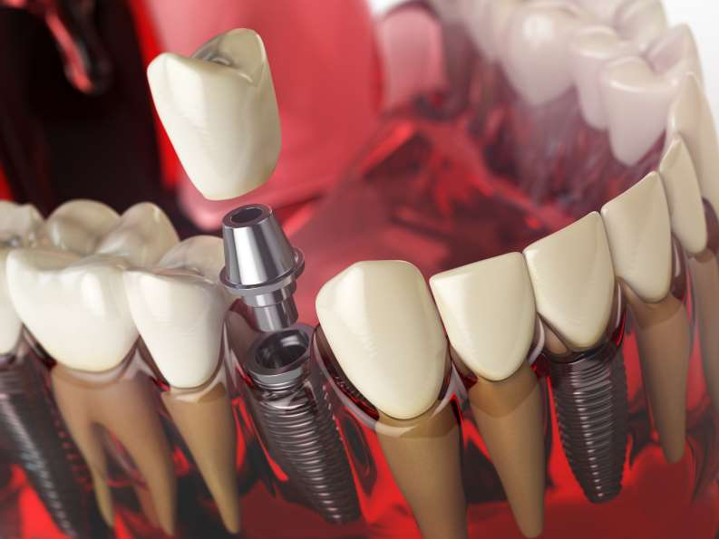 Dental Implants Offer an Innovative Alternative to Bridges