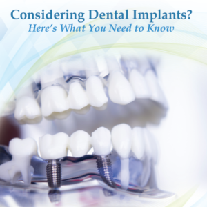 White paper thumbnail on Dental Implants