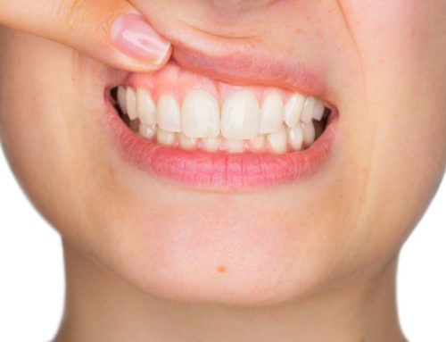 5 Key Questions to Ask About Gum Surgery