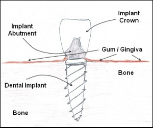 A diagram of dental implant inside a patients jaw.
