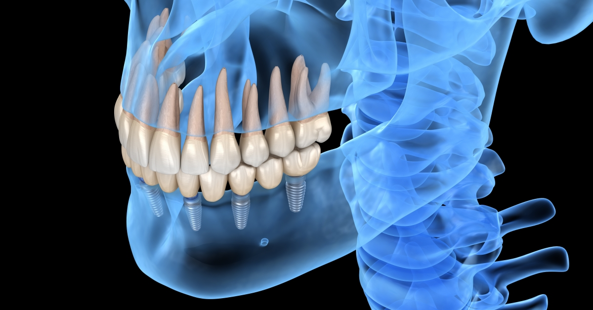 Why Today's Dental Implant Procedures Are Far Better