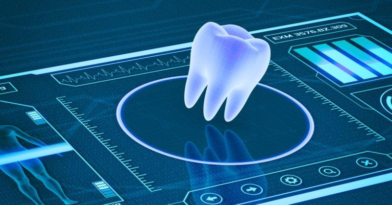 Modern wisdom teeth and dental extraction