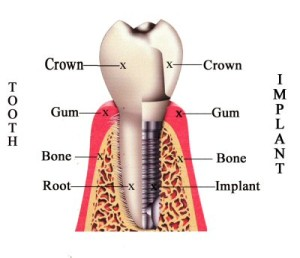 all on 4 dental implant illustration from OMSH in Houston TX