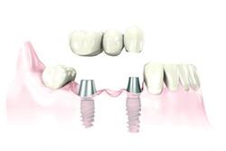 More-Benefits-of-Dental-Implants